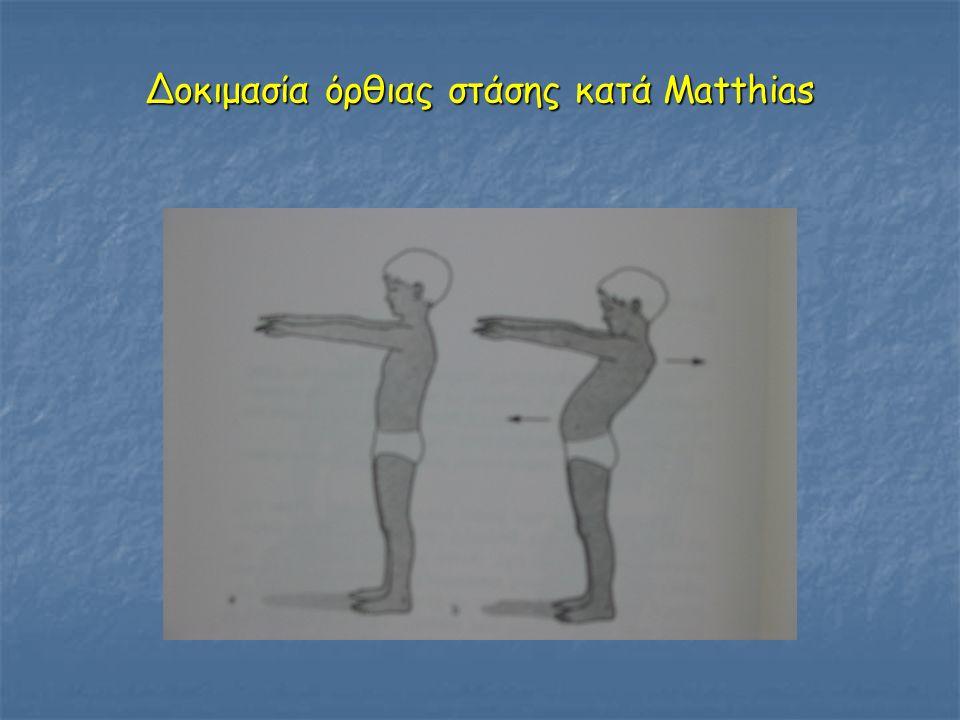 Δοκιμασία όρθιας στάσης κατά Matthias