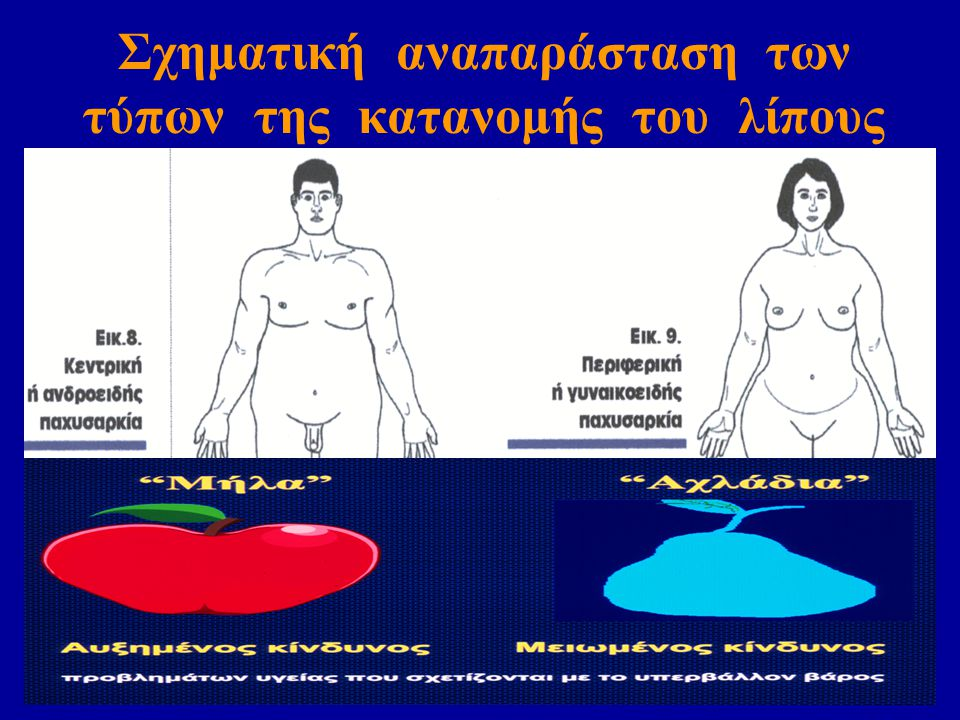 Σχηματική αναπαράσταση των τύπων της κατανομής του λίπους