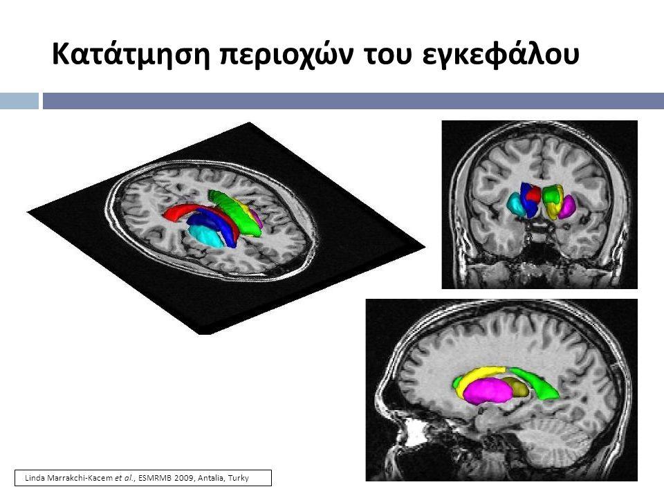 Κατάτμηση περιοχών του εγκεφάλου