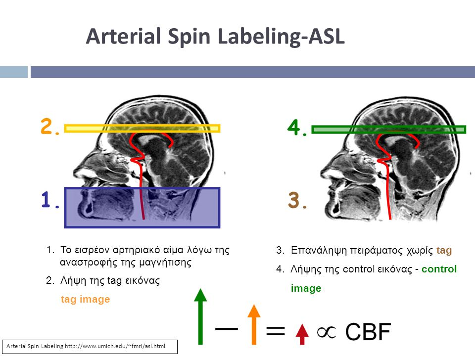 Arterial Spin Labeling-ASL