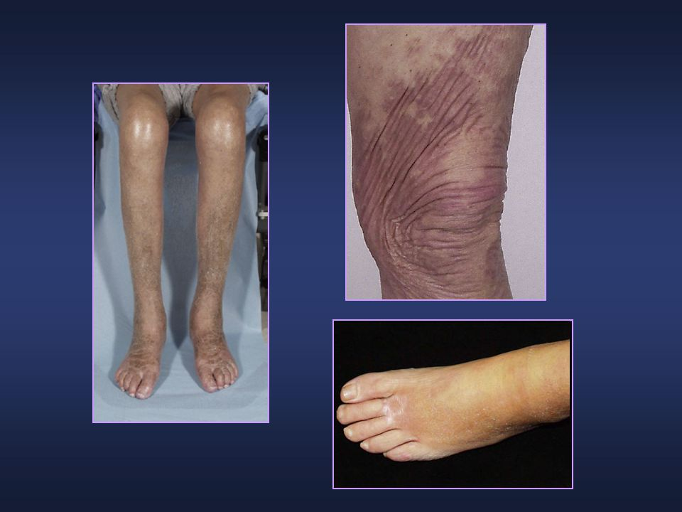 Characteristic skin changes seen in a patient with NSF showing hyperpigmentation, skin thickening, and joint flexion contractures. Photographs courtesy of Jonathan Kay, M.D.