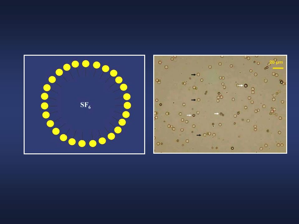 Scheme of a SonoVue microbubble with the peripheral phospholipids monolayer fi lled by sulphur hexafl uoride (SF6) gas. (Image courtesy of Peter JA Frinking, PhD, Bracco Research, Geneva, Switzerland)