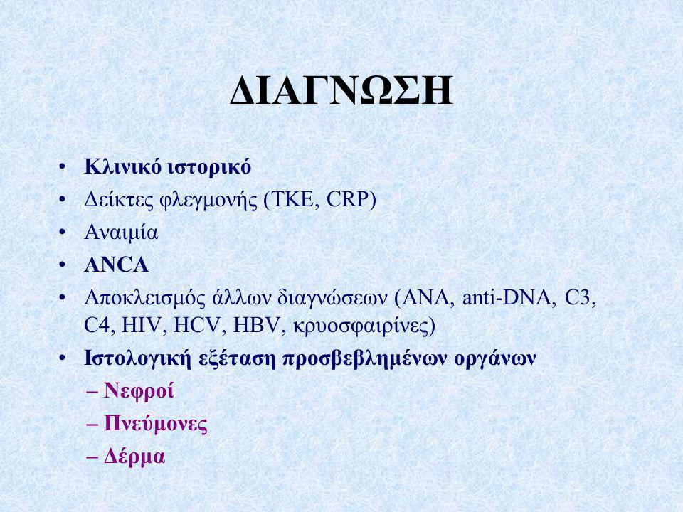 ΔΙΑΓΝΩΣΗ Κλινικό ιστορικό Δείκτες φλεγμονής (ΤΚΕ, CRP) Αναιμία ANCA