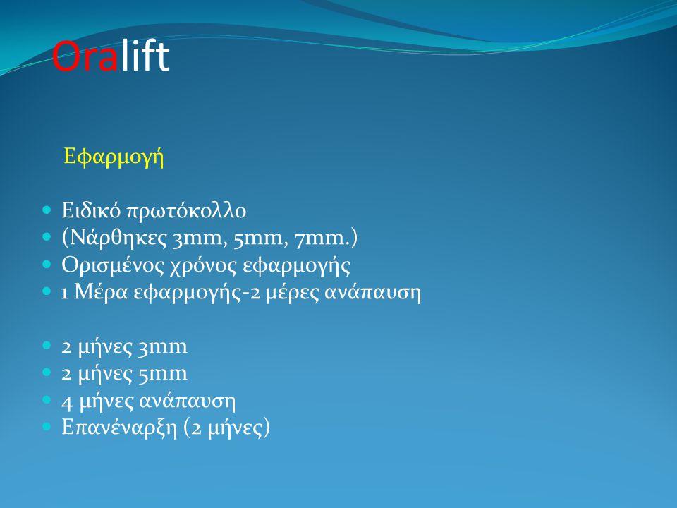 Oralift Εφαρμογή Ειδικό πρωτόκολλο (Νάρθηκες 3mm, 5mm, 7mm.)
