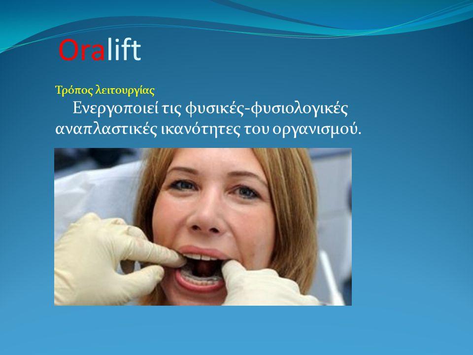 Oralift Τρόπος λειτουργίας.