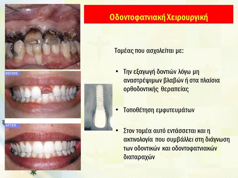 Οδοντοφατνιακή Χειρουργική