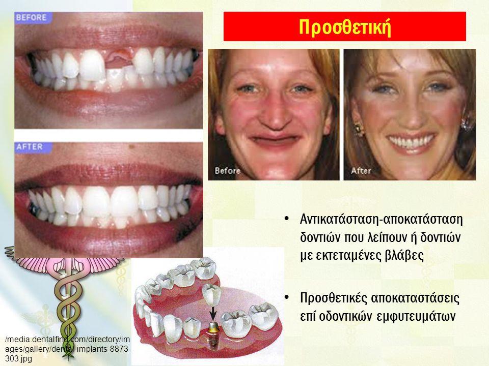 Προσθετική Αντικατάσταση-αποκατάσταση δοντιών που λείπουν ή δοντιών με εκτεταμένες βλάβες. Προσθετικές αποκαταστάσεις επί οδοντικών εμφυτευμάτων.
