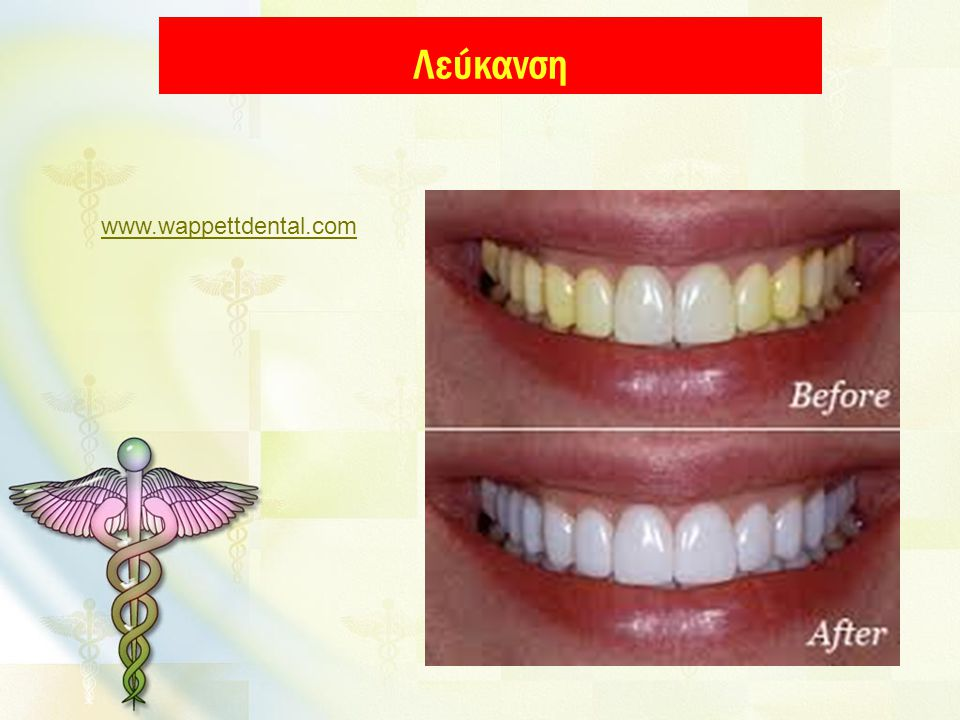 Λεύκανση www.wappettdental.com
