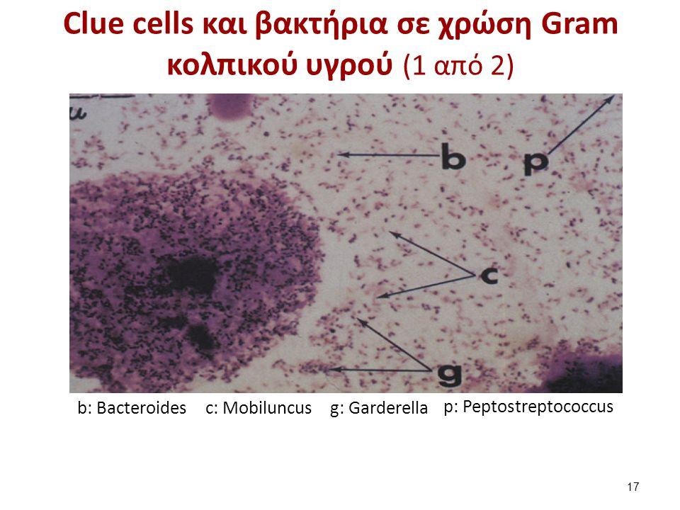 Clue cells και βακτήρια σε χρώση Gram κολπικού υγρού (2 από 2)