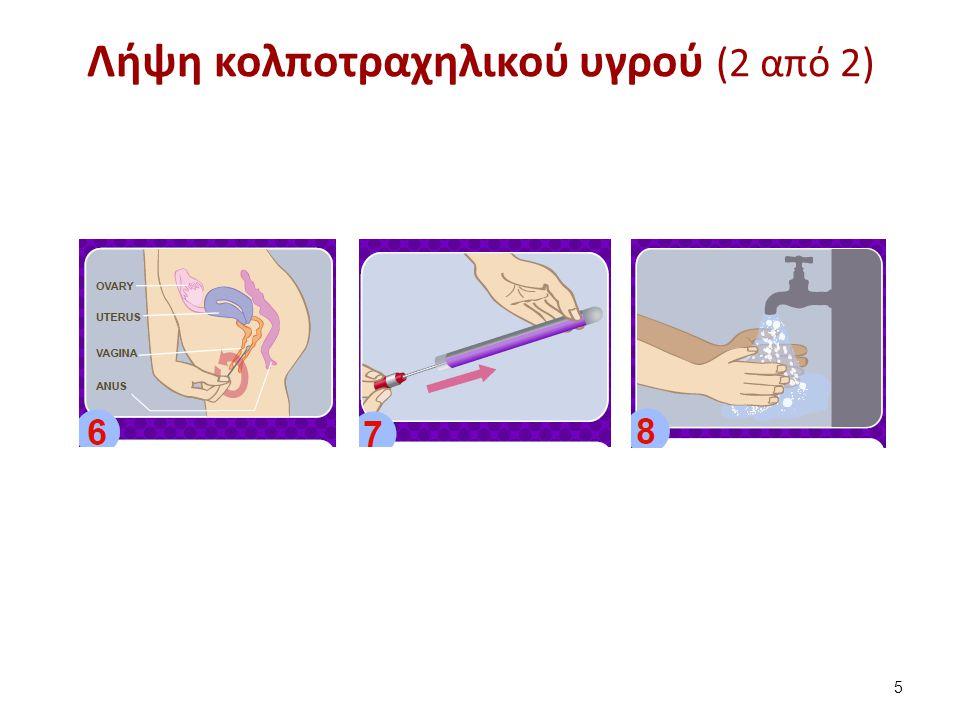 Αίτια κολπίτιδας Βακτήρια (κυρίως Gardneralla vaginallis),