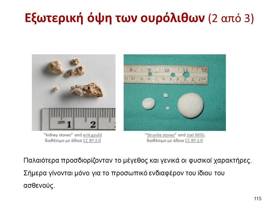 Εξωτερική όψη των ουρόλιθων (3 από 3)