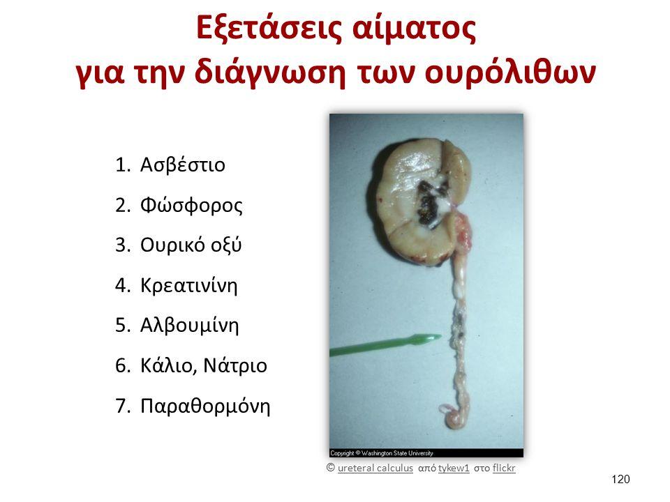 Μέτρηση ούρων 24ώρου για την διάγνωση των ουρόλιθων