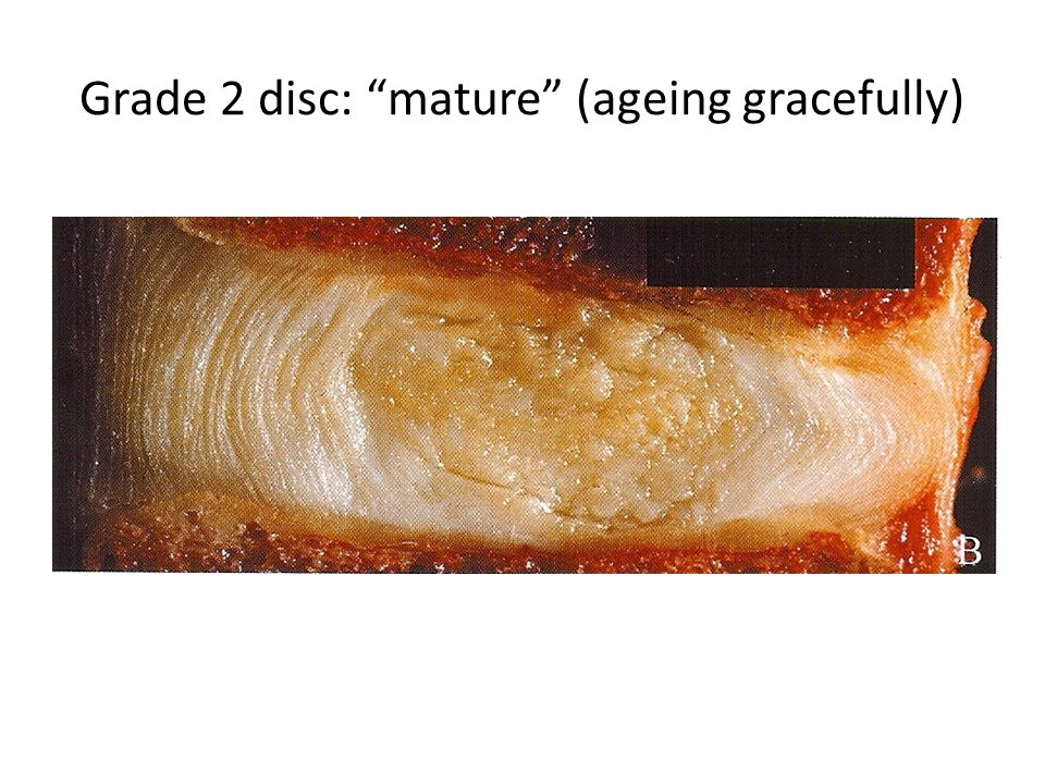 Grade 2 disc: mature (ageing gracefully)