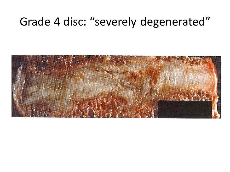 Grade 4 disc: severely degenerated