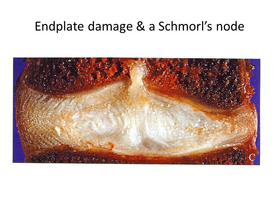 Endplate damage & a Schmorl's node