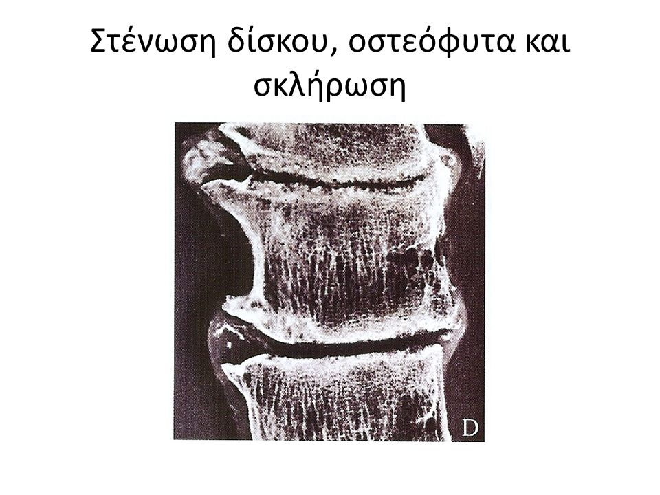Στένωση δίσκου, οστεόφυτα και σκλήρωση
