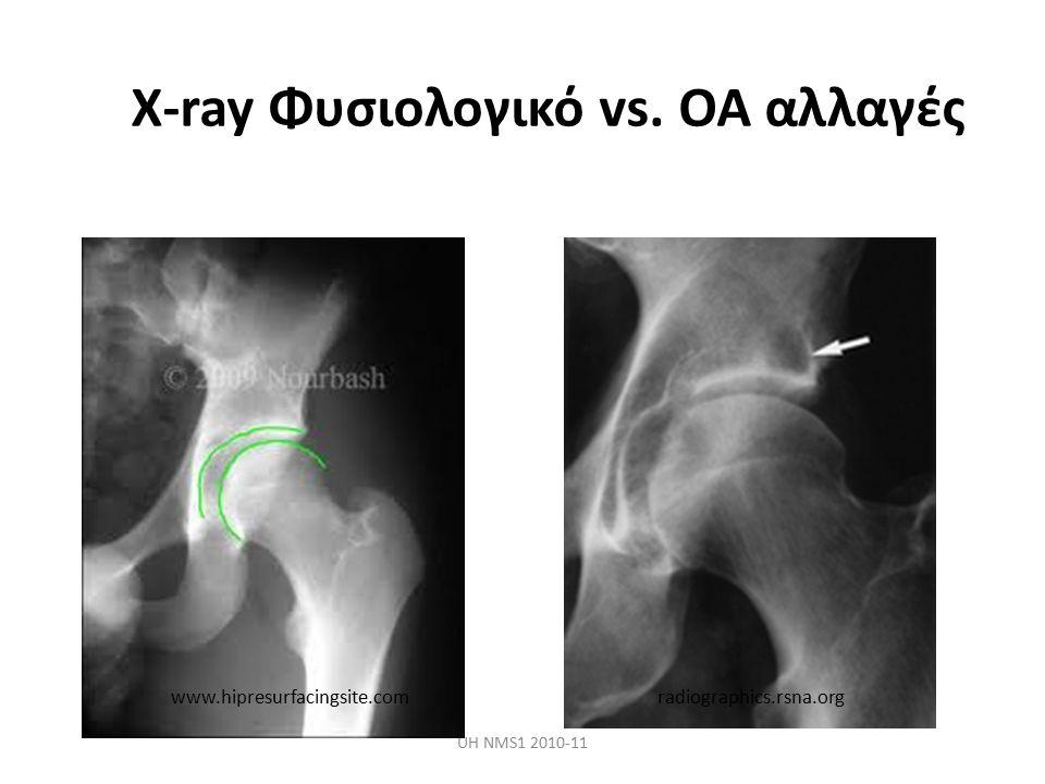 X-ray Φυσιολογικό vs. OA αλλαγές