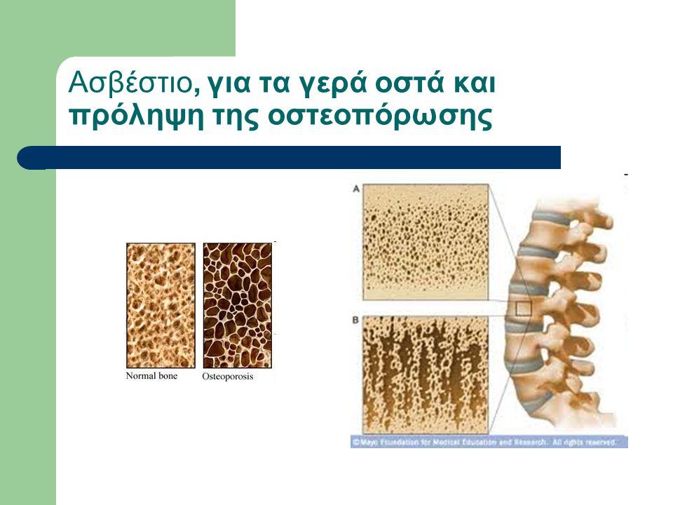Ασβέστιο, για τα γερά οστά και πρόληψη της οστεοπόρωσης