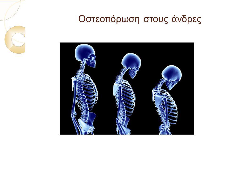 Οστεοπόρωση στους άνδρες