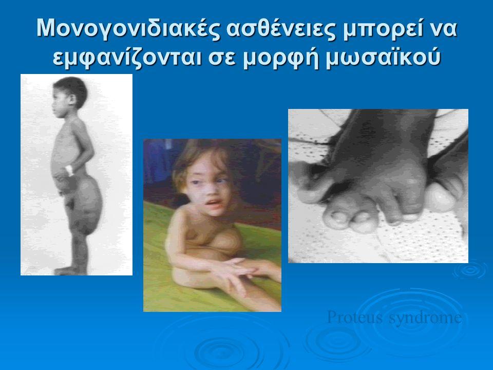Μονογονιδιακές ασθένειες μπορεί να εμφανίζονται σε μορφή μωσαϊκού