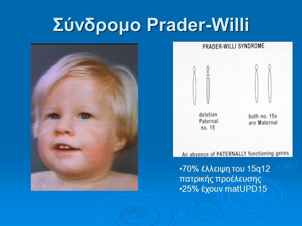 Σύνδρομο Prader-Willi