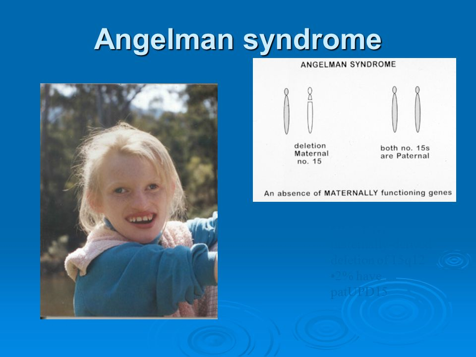 Angelman syndrome 70% have maternally-derived deletion of 15q12