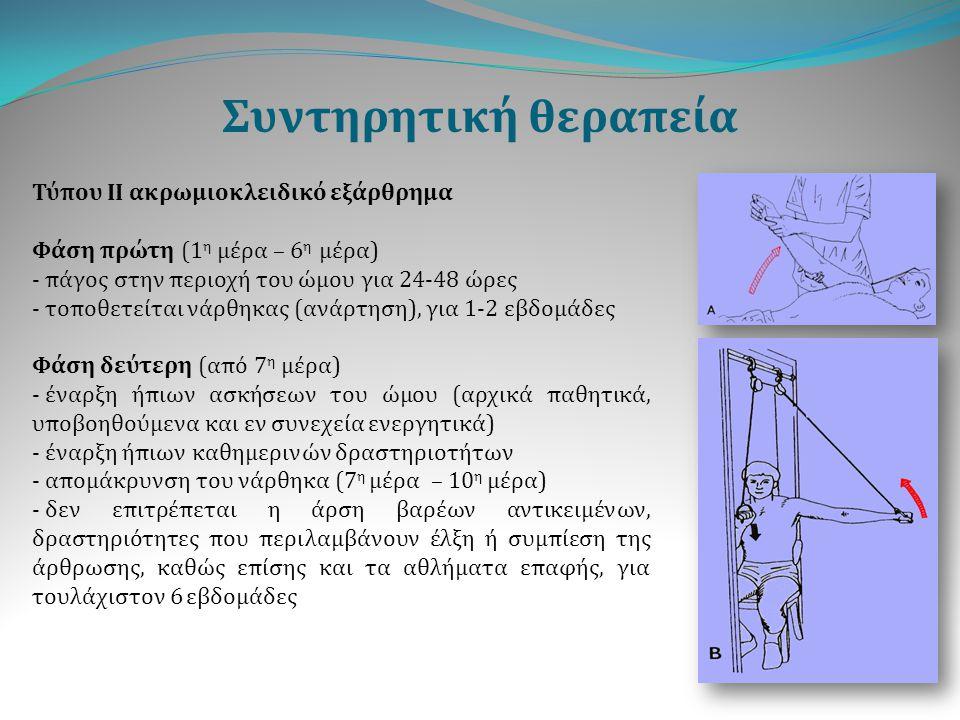 Συντηρητική θεραπεία Τύπου ΙΙ ακρωμιοκλειδικό εξάρθρημα