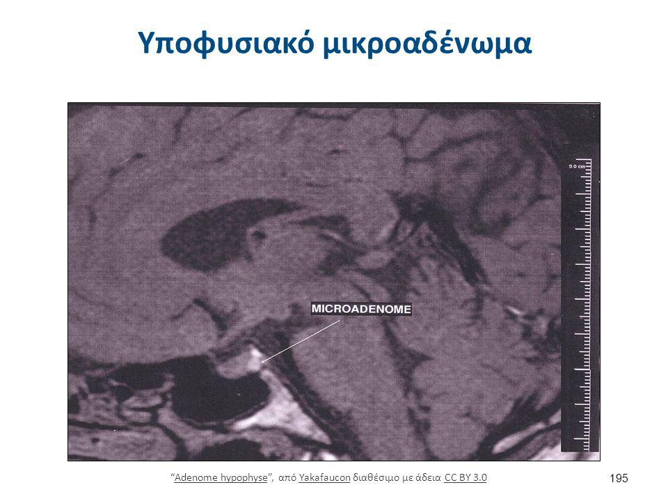 Μακροαδένωμα σε ασθενή με μεγαλακρία