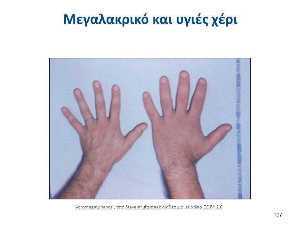 Πάχυνση δέρματος σε μεγαλακρικό ασθενή