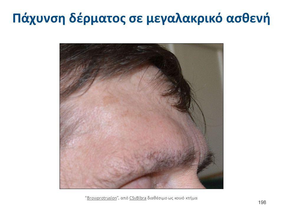 Διαταραχές στόματος και οδόντων στην μεγαλακρία