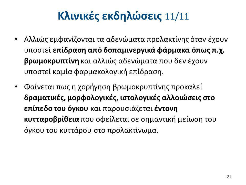 Προλακτινώματα και εγκυμοσύνη 1/6