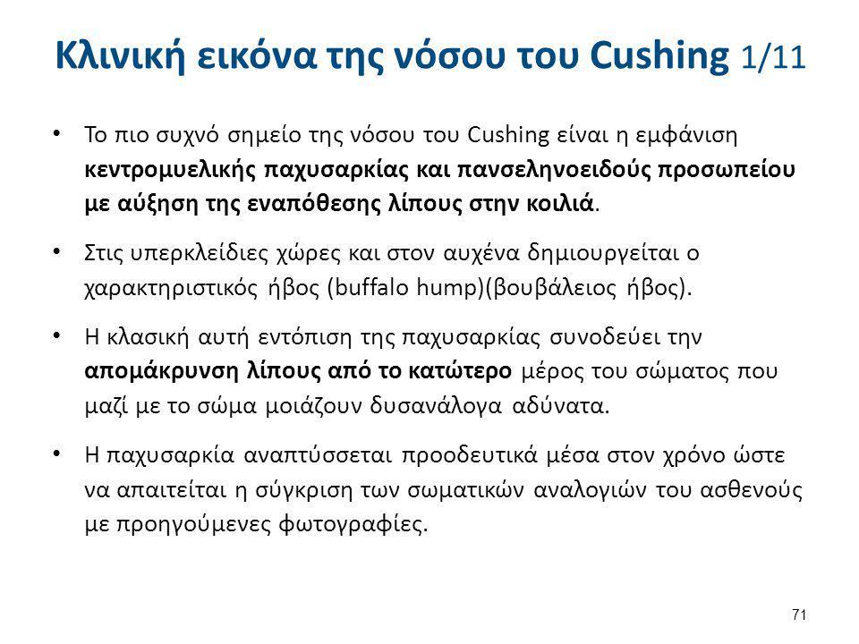 Κλινική εικόνα της νόσου του Cushing 2/11