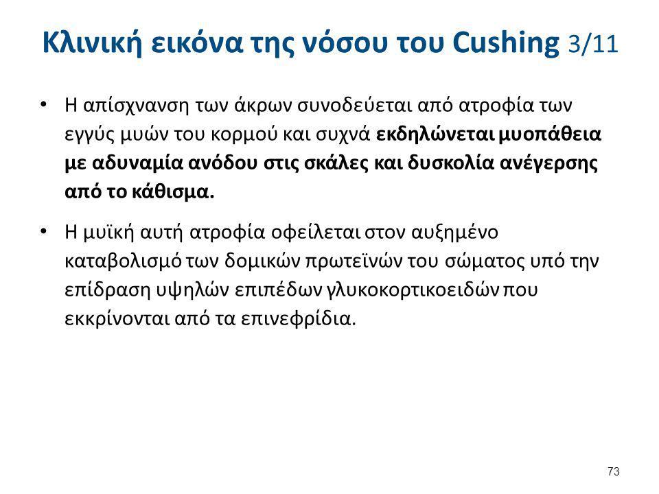 Κλινική εικόνα της νόσου του Cushing 4/11