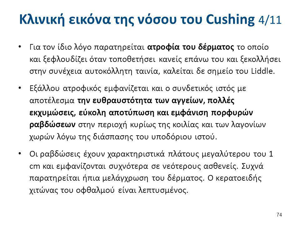 Κλινική εικόνα της νόσου του Cushing 5/11