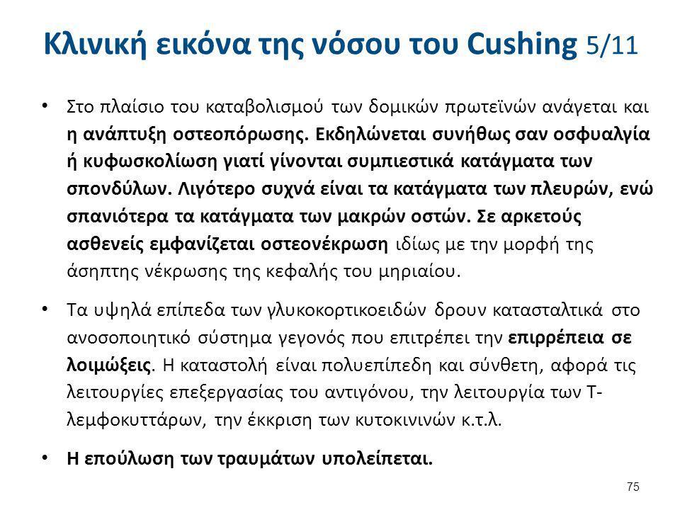 Κλινική εικόνα της νόσου του Cushing 6/11