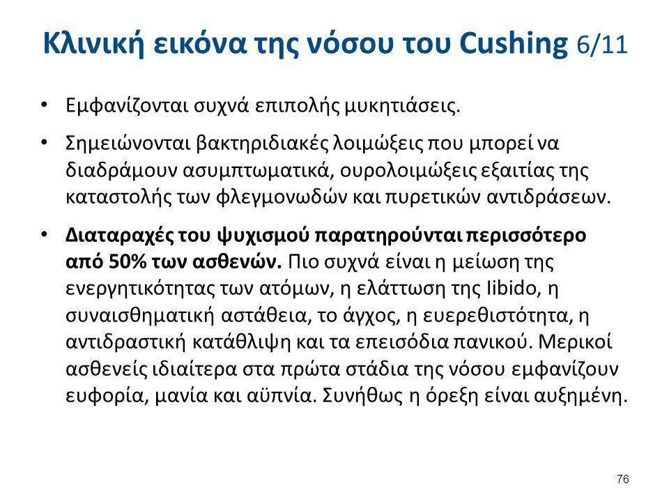 Κλινική εικόνα της νόσου του Cushing 7/11