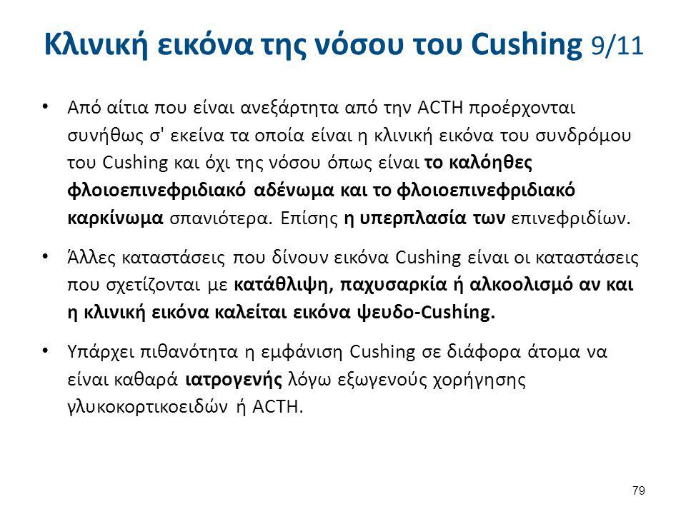 Κλινική εικόνα της νόσου του Cushing 10/11