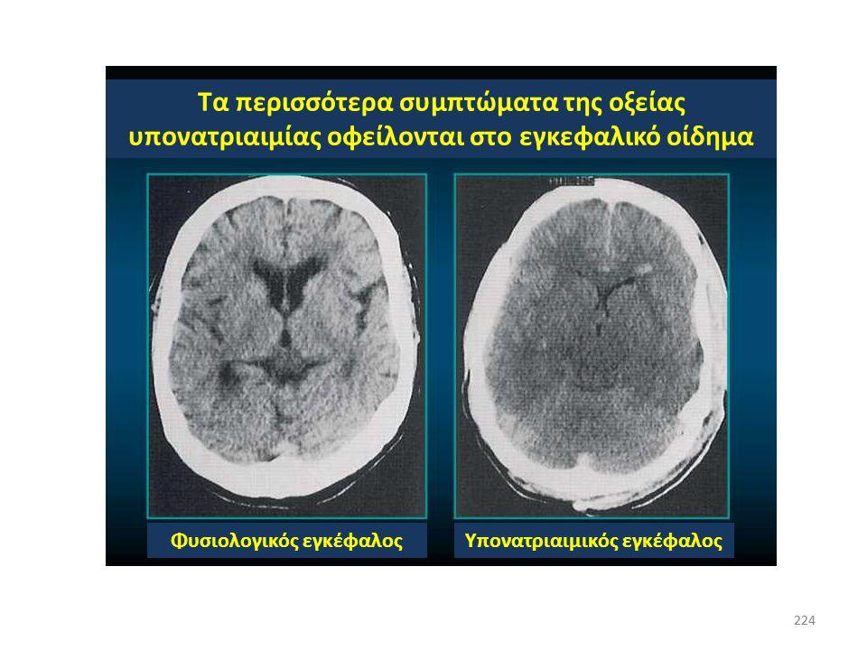Φυσιολογικός εγκέφαλος Υπονατριαιμικός εγκέφαλος