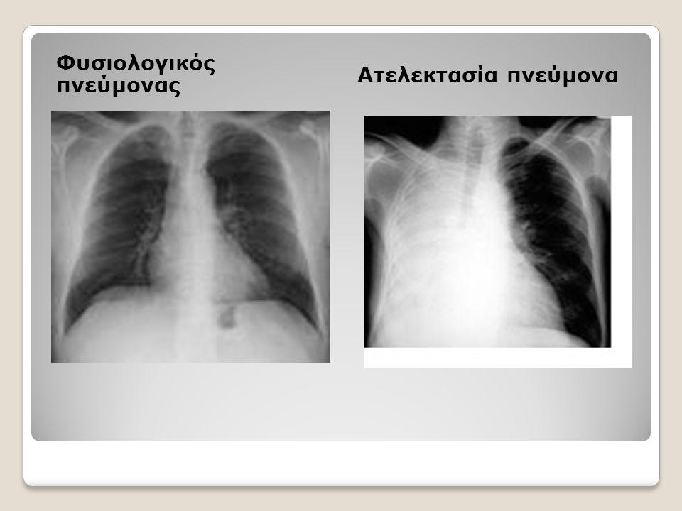Φυσιολογικός πνεύμονας