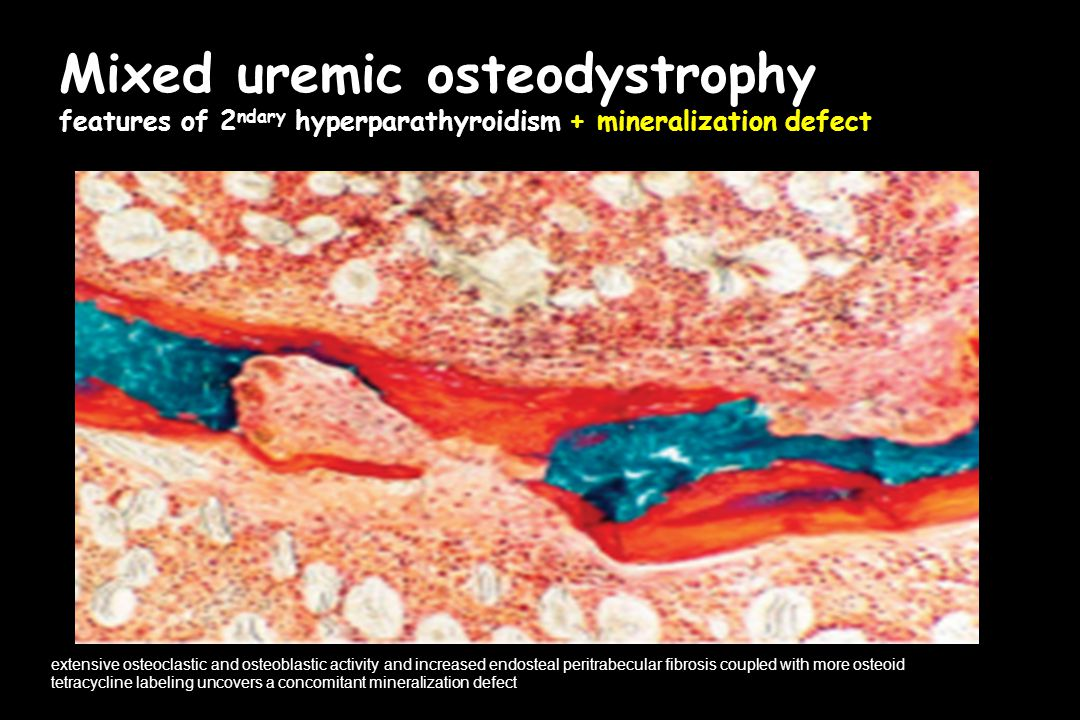 Mixed uremic osteodystrophy features of 2ndary hyperparathyroidism + mineralization defect