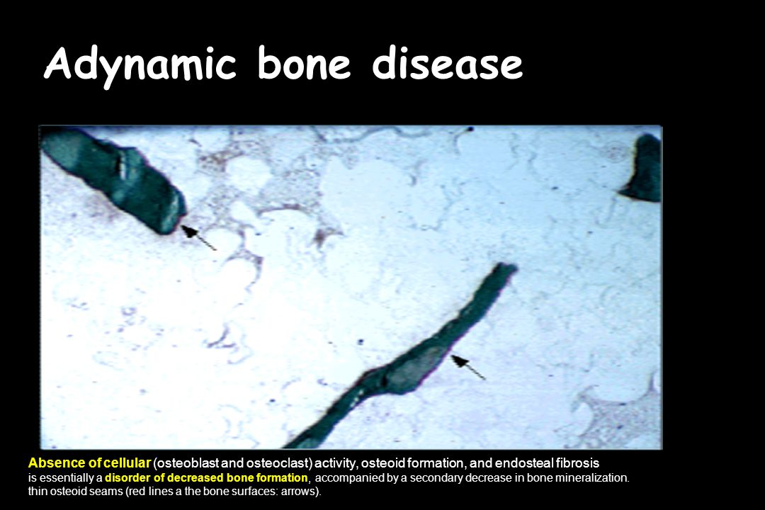 Adynamic bone disease Αbsence of cellular (osteoblast and osteoclast) activity, osteoid formation, and endosteal fibrosis.