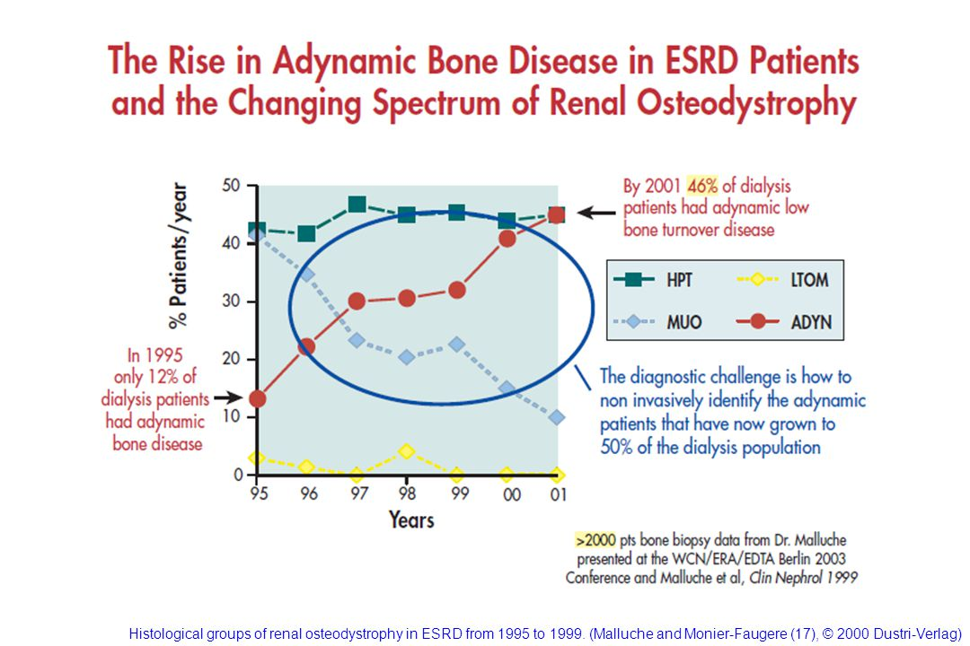 Histological groups of renal osteodystrophy in ESRD from 1995 to 1999