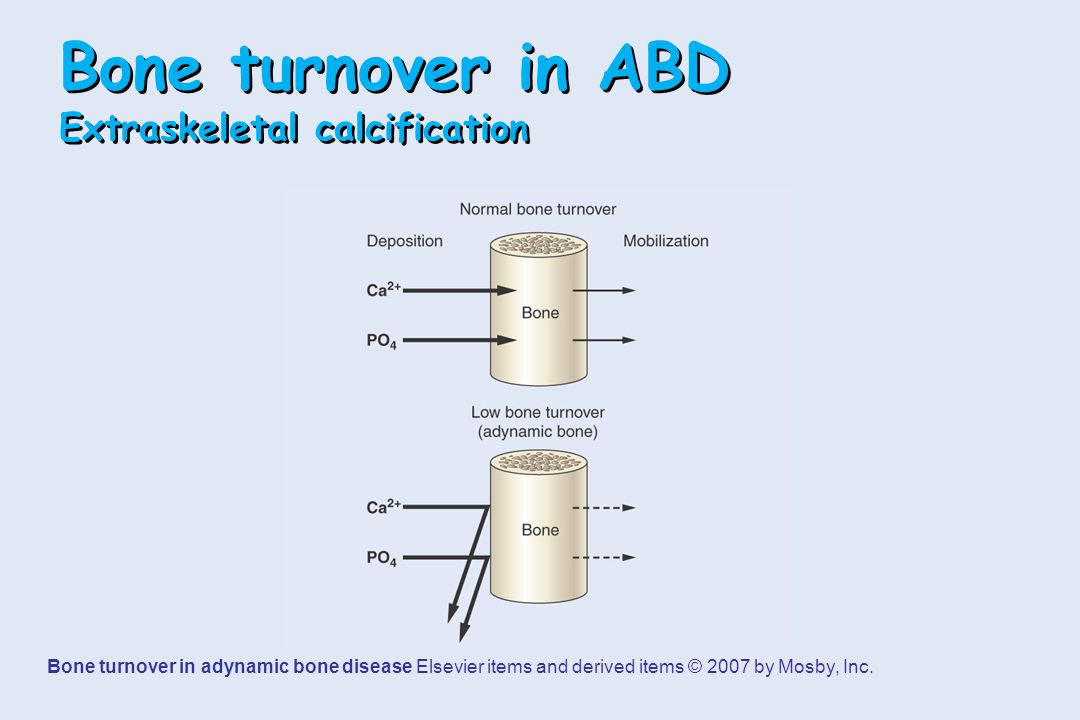Bone turnover in ABD Extraskeletal calcification