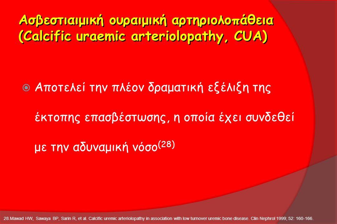 Ασβεστιαιμική ουραιμική αρτηριολοπάθεια (Calcific uraemic arteriolopathy, CUA)