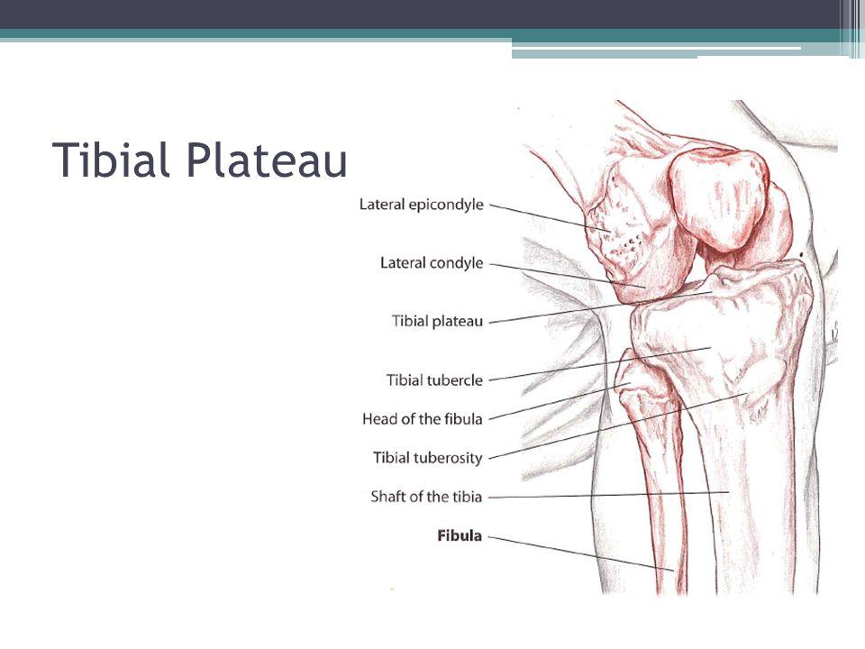 Tibial Plateau