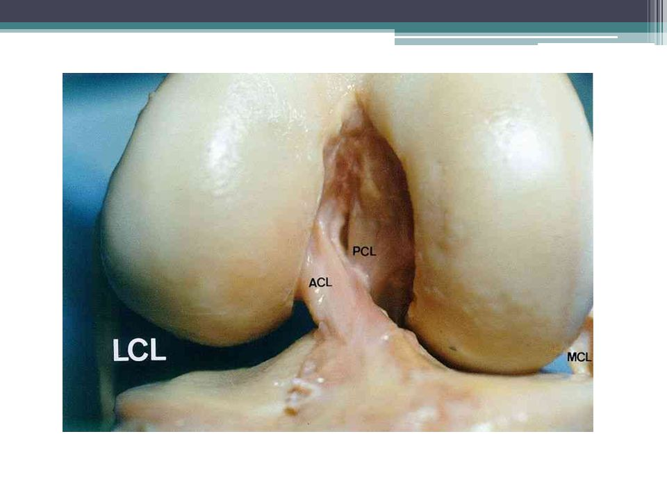 The cruciate ligaments (image) are two in number