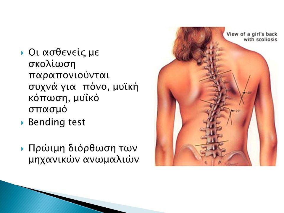 Οι ασθενείς με σκολίωση παραπονιούνται συχνά για πόνο, μυϊκή κόπωση, μυΐκό σπασμό