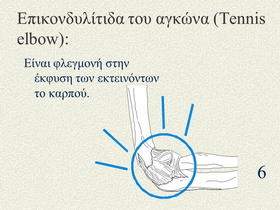 Επικονδυλίτιδα του αγκώνα (Tennis elbow):