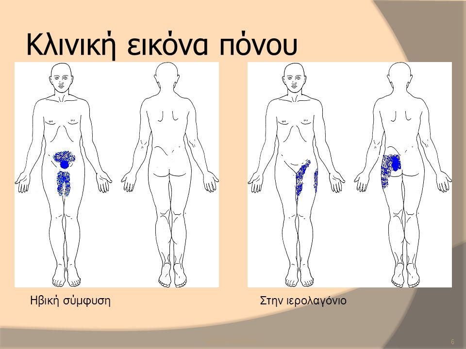 Κλινική εικόνα πόνου Ηβική σύμφυση Στην ιερολαγόνιο SCR/CB/ANP/2013