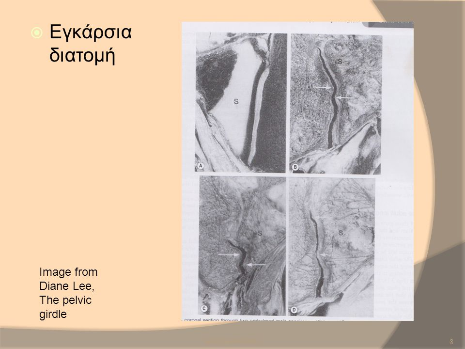 Εγκάρσια διατομή Image from Diane Lee, The pelvic girdle